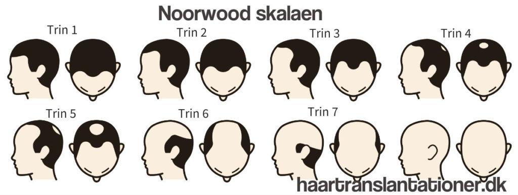 Norwood skalaen hårtab mænd